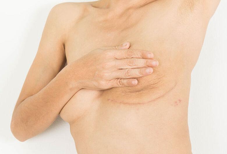 Projeto da UFSCar atende mulheres que passaram por cirurgia de câncer de mama