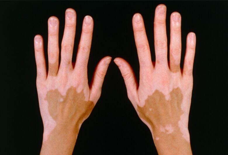 Laboratório da UFSCar convida mulheres portadoras de vitiligo a participarem de pesquisa sobre saúde e bem-estar