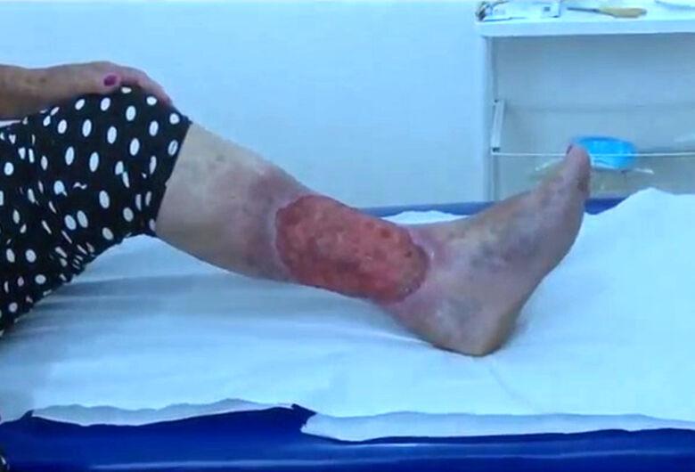 Tecnologias ópticas tratam de forma gratuita câncer de pele e úlceras