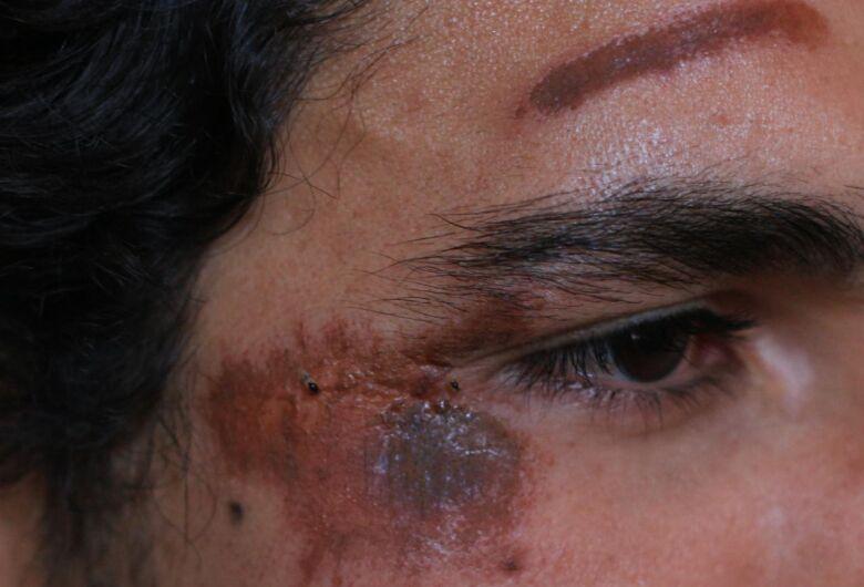 Estudante da UFSCar alega ter sido espancado