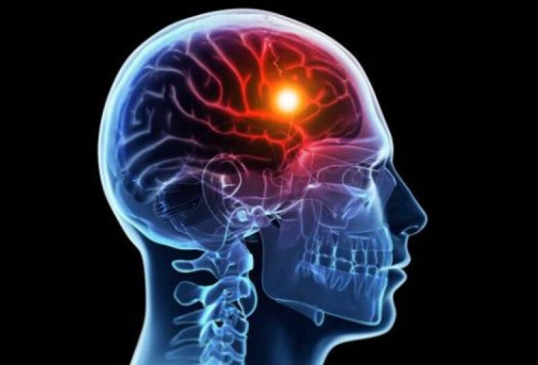 UFSCar oferece atendimento gratuito para pessoas que sofreram Acidente Vascular Cerebral