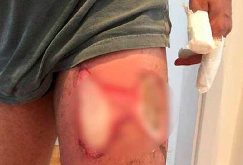 Homem tem queimaduras na perna e mão após celular explodir no bolso da calça