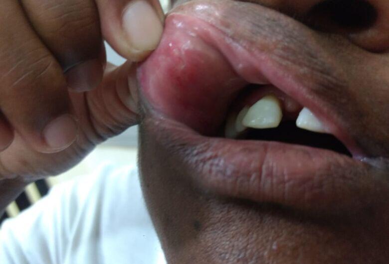 Mulher é agredida com dois socos no rosto no Zavaglia