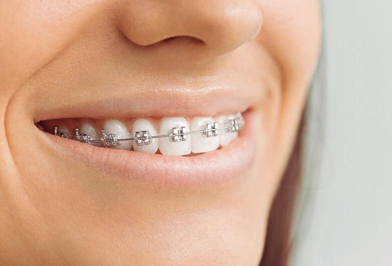 Ortodontia UFSCar seleciona pacientes que necessitam de aparelhos nos dentes