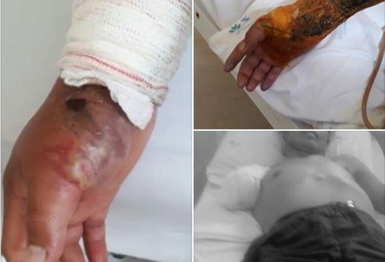 Sumiço de R$ 100 resulta em agressão e amputação de braço de ajudante de serralheiro