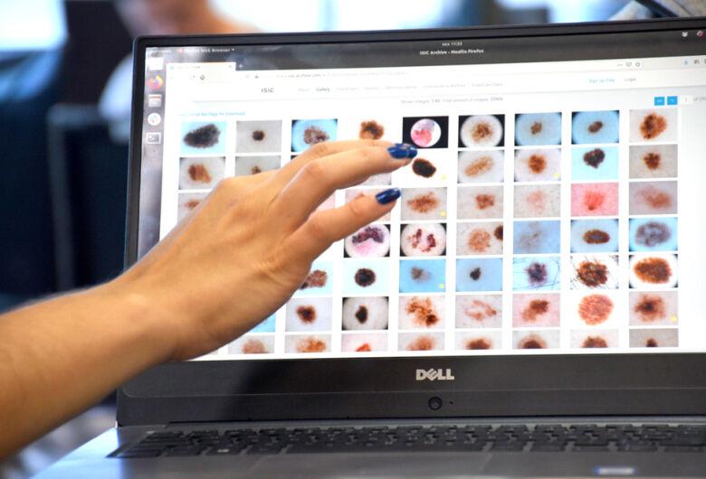 Unicamp: Software pode diagnosticar câncer de pele com precisão de 86%