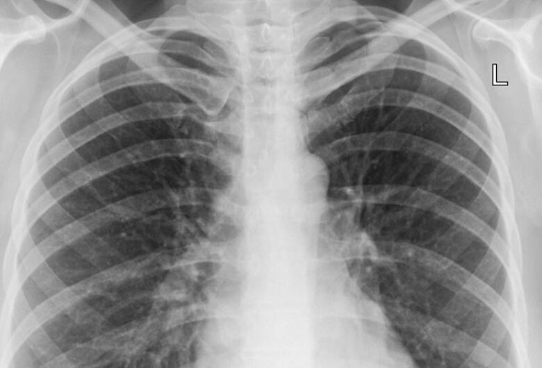 Vacina mais eficaz contra pneumonia é testada em humanos