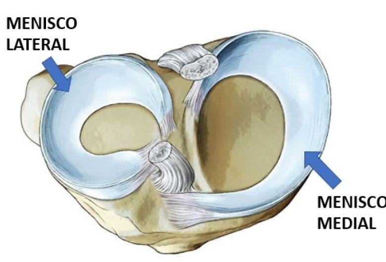 Lesão no menisco é uma das cirurgias ortopédicas mais comuns