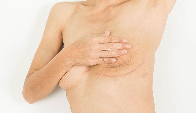 Projeto da UFSCar atende mulheres que passaram por cirurgia de câncer de mama - Crédito: Divulgação