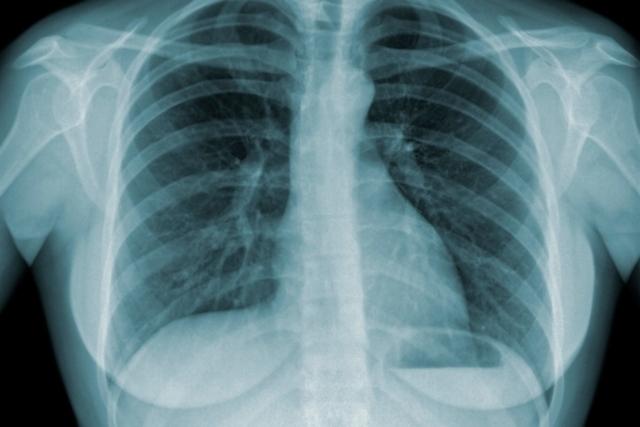 Pulmão tuberculose - Crédito: divulgação
