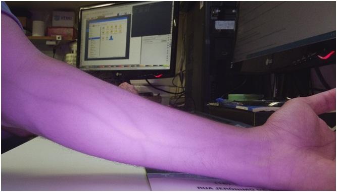 Sistema de visualização de veias para facilitar a aplicação intravenosa em hospitais desenvolvido com a empresa DUAN - Crédito: divulgação