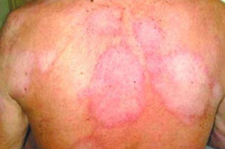 Hanseníase: doença pode ser silenciosa por até sete anos - Crédito: divulgação