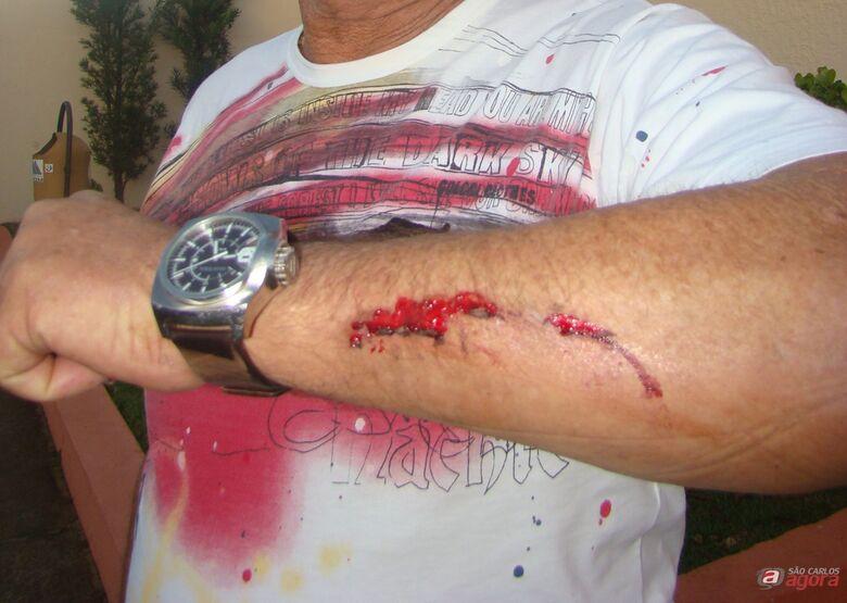 Prefeito mostra braço machucado após ser agredido. -