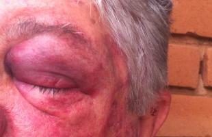 Idosos foram torturados pelos criminosos (Daiane Bombarda/Tribuna Araraquara) -