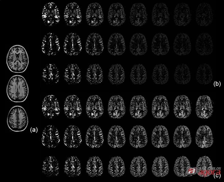 Esses promissores resultados foram obtidos através de imagens por Ressonância Magnética em indivíduos sem doenças cerebrovasculares -