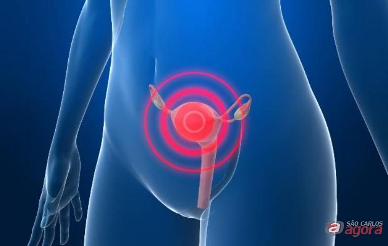 Câncer de colo do útero é uma doença que se desenvolve a partir da Neoplasia Intraepitelial Cervical. Foto: Divulgação -