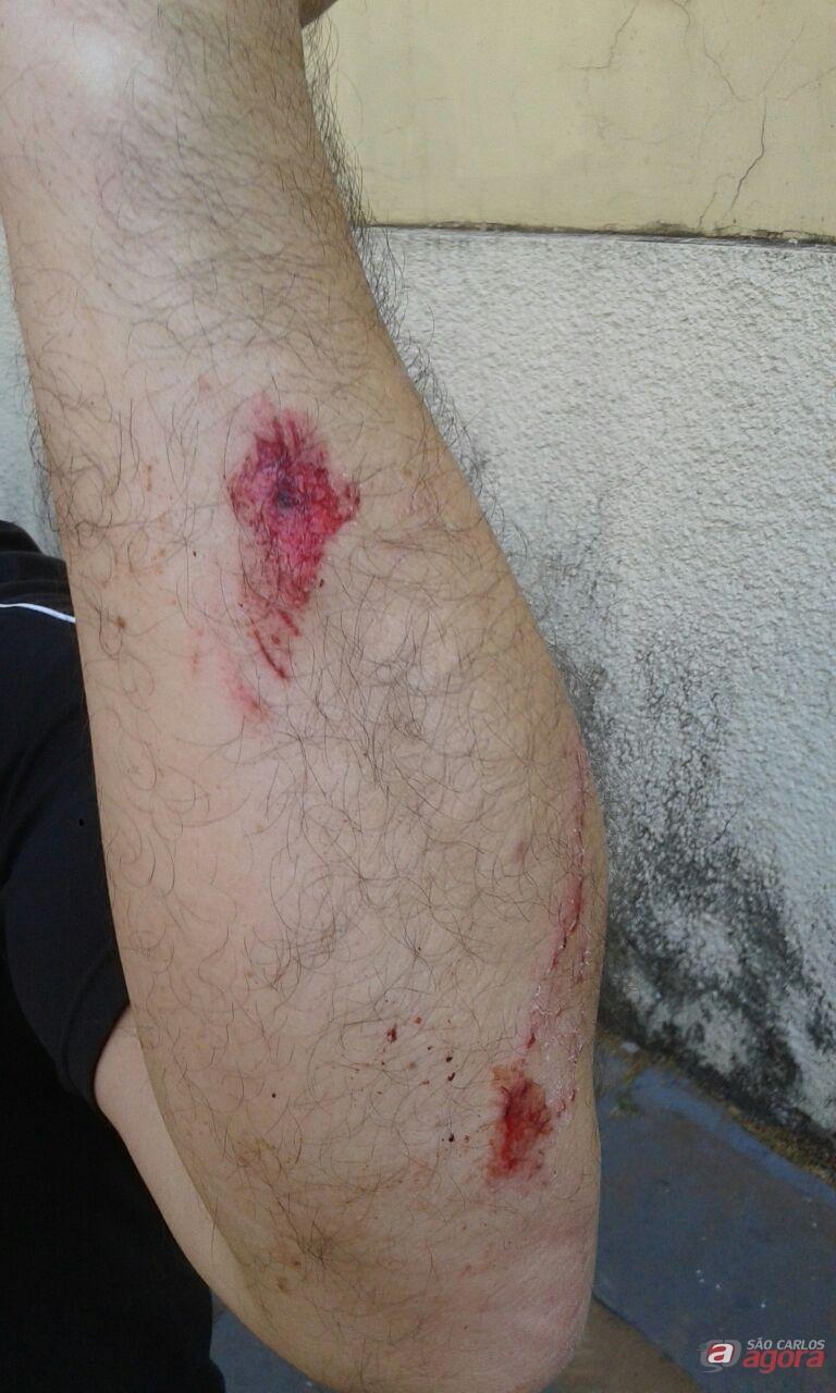 Professor ainda se feriu durante o ato de vandalismo. (foto Anderson Lucio) -