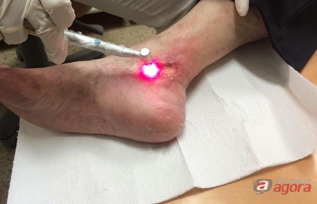 Santa Casa e USP oferecem tratamento gratuito de Ulcera Diabética nos pés -