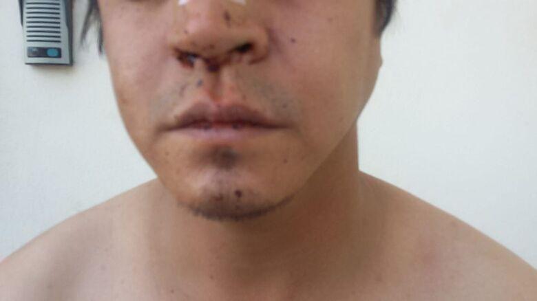 Homem alega que foi agredido por seguranças de casa de shows - Crédito: Luciano Lopes