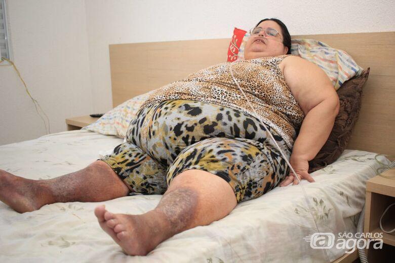 Com obesidade mórbida, dona de casa procura ajuda para ter a chance de viver com dignidade - Crédito: Marco Lúcio