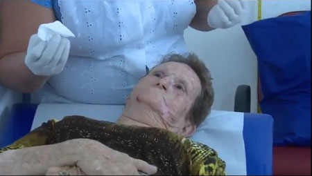 Em São Carlos: o carinho e cuidado de quem trata alguém pelo nome - Câncer de pele (não melanoma) tratado por terapia fotodinâmica - Crédito: Rui Sintra