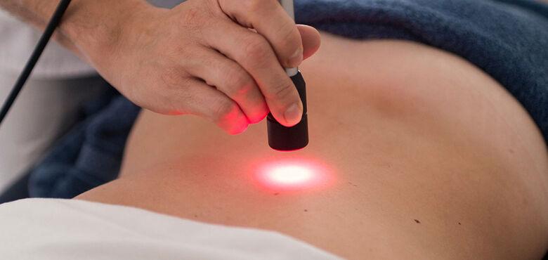 UFSCar promove curso de capacitação sobre uso de laserterapia no tratamento de feridas - Crédito: Divulgação