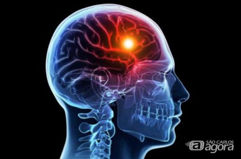 UFSCar oferece atendimento gratuito para pessoas que sofreram Acidente Vascular Cerebral - Crédito: Divulgação