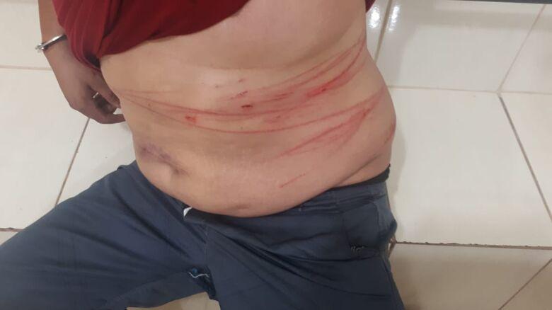Casal é detido após agressões com facas no Planalto Verde -