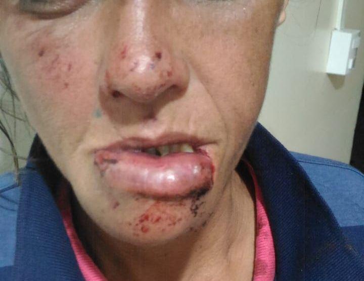 Dona de casa é agredida com socos na boca pelo companheiro - Crédito: Arquivo/SCA