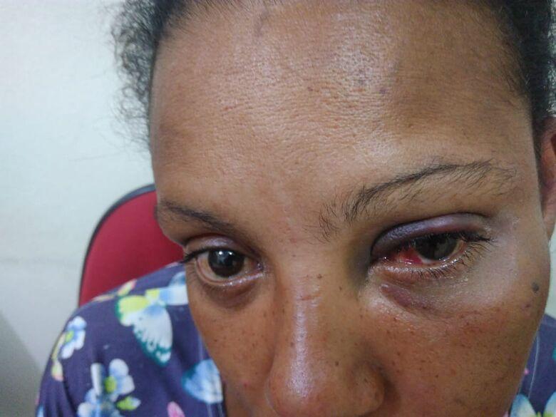 Gestante é agredida pelo companheiro com socos e chutes na cabeça - Crédito: Arquivo/SCA