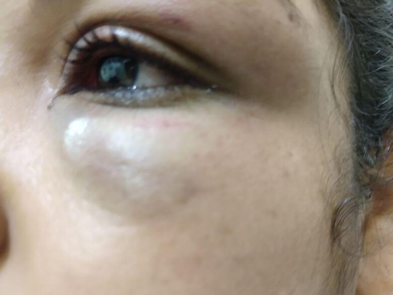 Em fase de separação, homem agride mulher no Santa Angelina - Crédito: Luciano Lopes