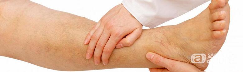 IFSC/USP São Carlos faz chamada para tratamento de úlceras vasculares - Crédito: Divulgação