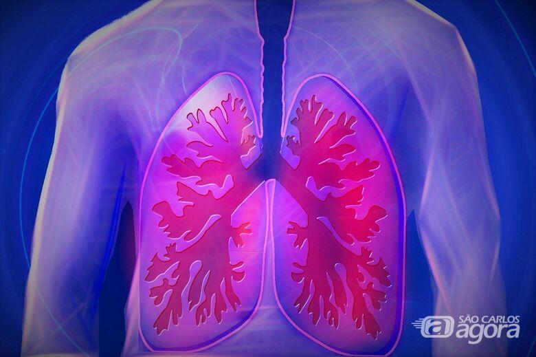 Fisioterapia respiratória é indispensável para recuperação da Covid-19 - Crédito: Pixabay