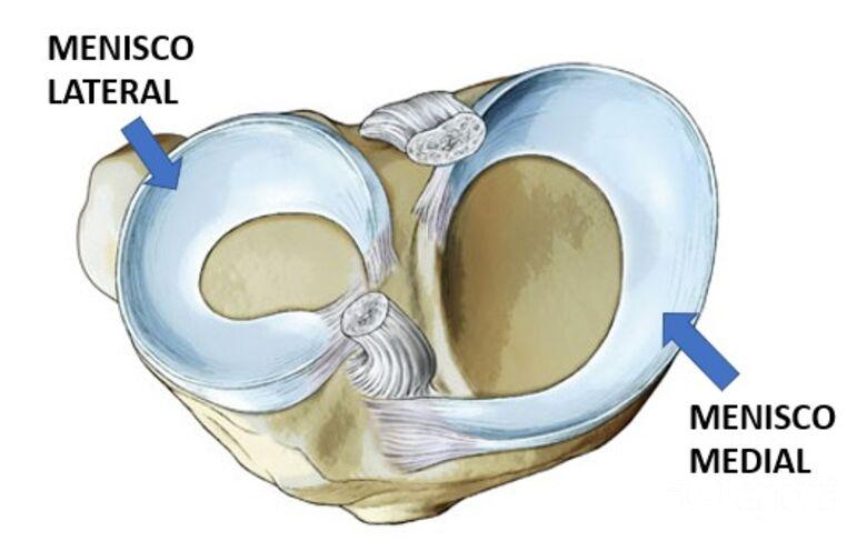 Lesão no menisco é uma das cirurgias ortopédicas mais comuns -