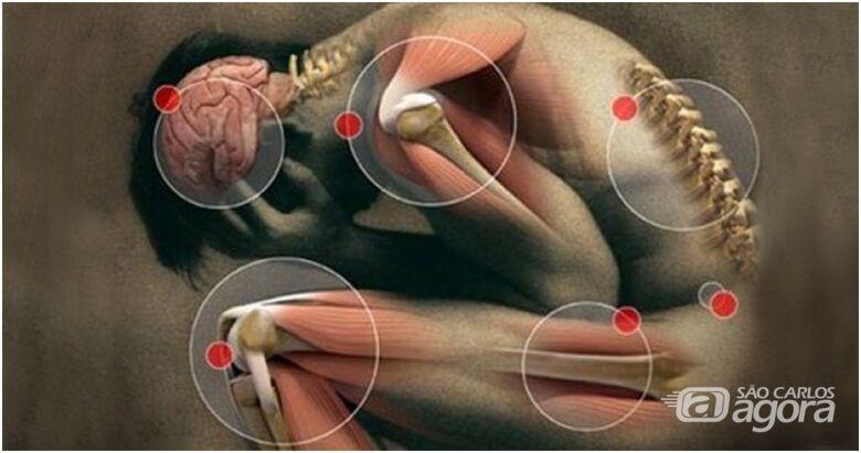 Equipamento inovador é usado para tratar caso incomum de fibromialgia - Crédito: Foto: Reprodução/Wikipedia