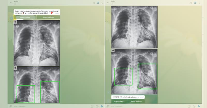 USP cria aplicativo que faz o diagnóstico da covid-19 a partir de radiografia do pulmão – São Carlos Agora